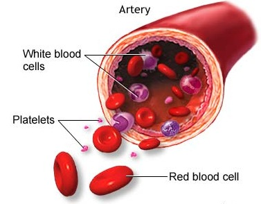 Low Platelet Count During Pregnancy